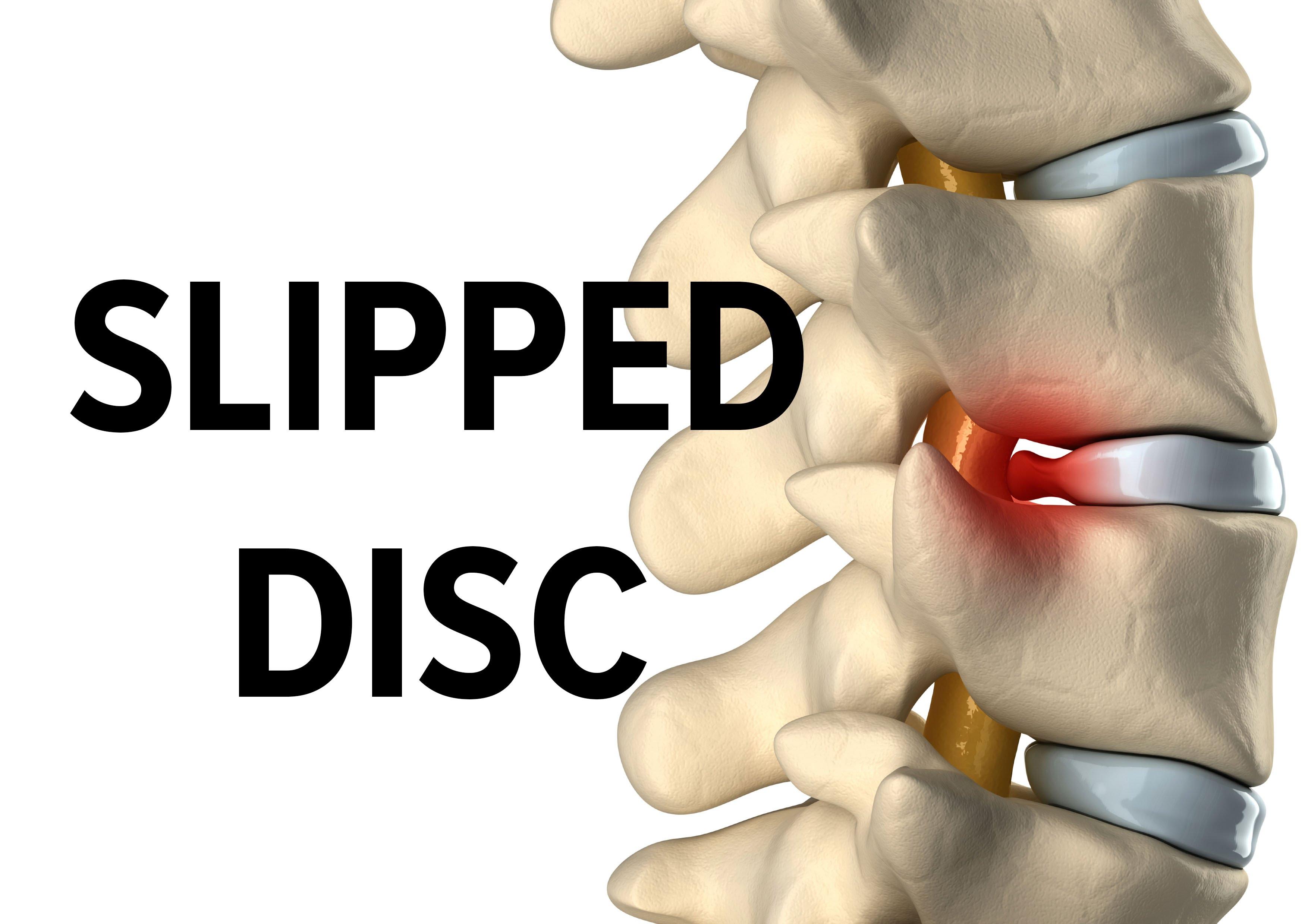 Slip Disc Cara Rawat Berkesan Tanpa Pembedahan