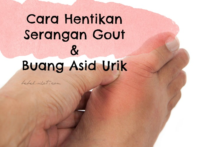 Cara Hentikan Serangan Gout dan Buang Asid Urik