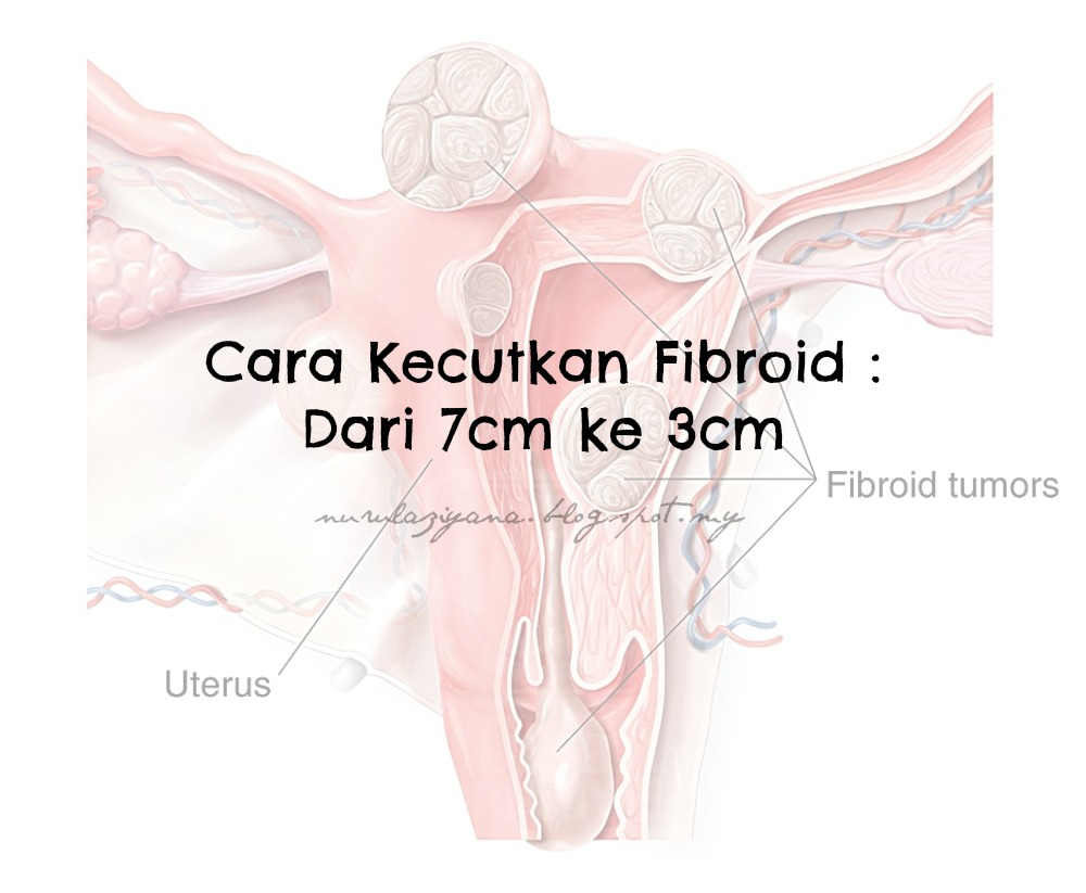 Cara Kecutkan Fibroid : Dari 7cm ke 3cm