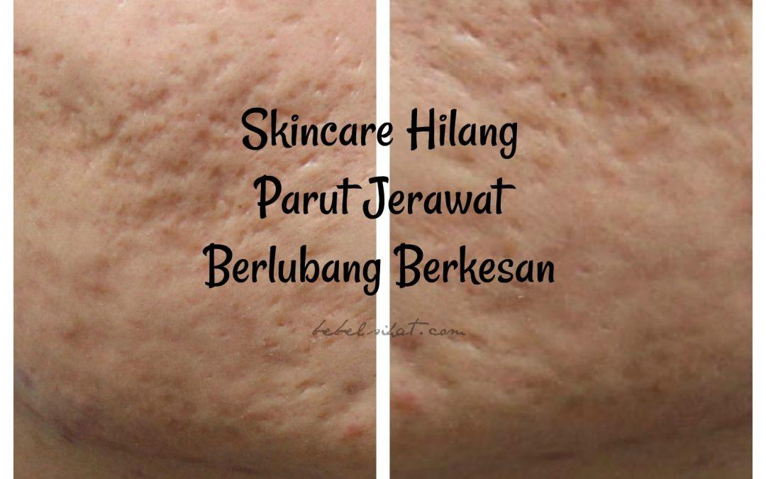 Skincare Hilang Parut jerawat Berlubang Berkesan