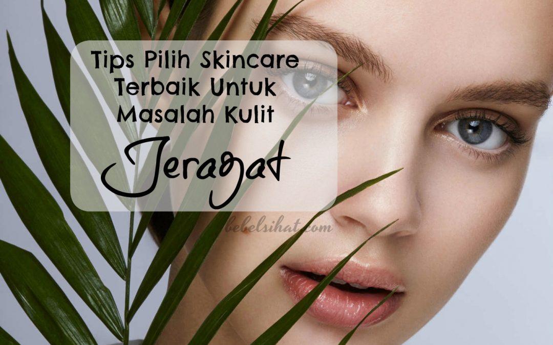 Tips Pilih Skincare Terbaik Untuk Masalah Kulit Jeragat