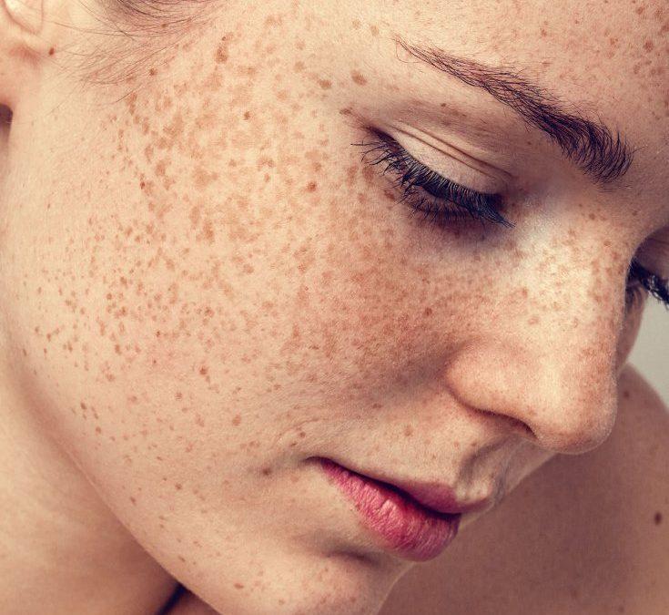 Hilang Jeragat Dengan Skincare Organic, Berkesan dan Selamat