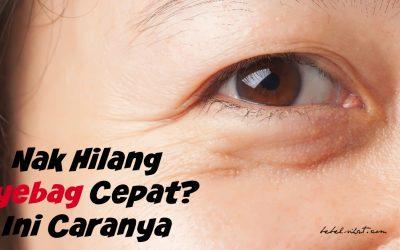 Nak Hilang Eyebag Cepat? Ini Caranya